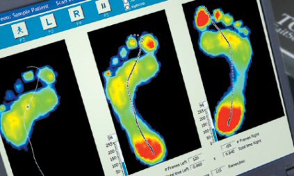 gaitscan foot scanning gait analysis